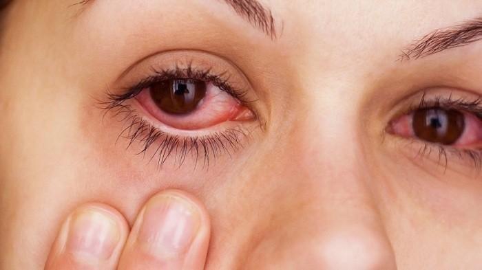 Beberapa cara alami untuk obati gejala iritasi pada mata